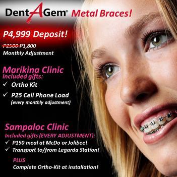 Dental Braces Deals Incl  P5000 SM Shopping Spree! Choose
