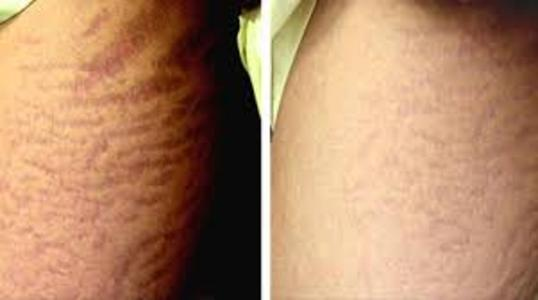 Stretch mark solutions for Stretch mark tattoo camouflage