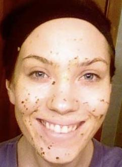 Herbal Power Peel girl treating acne with scrub
