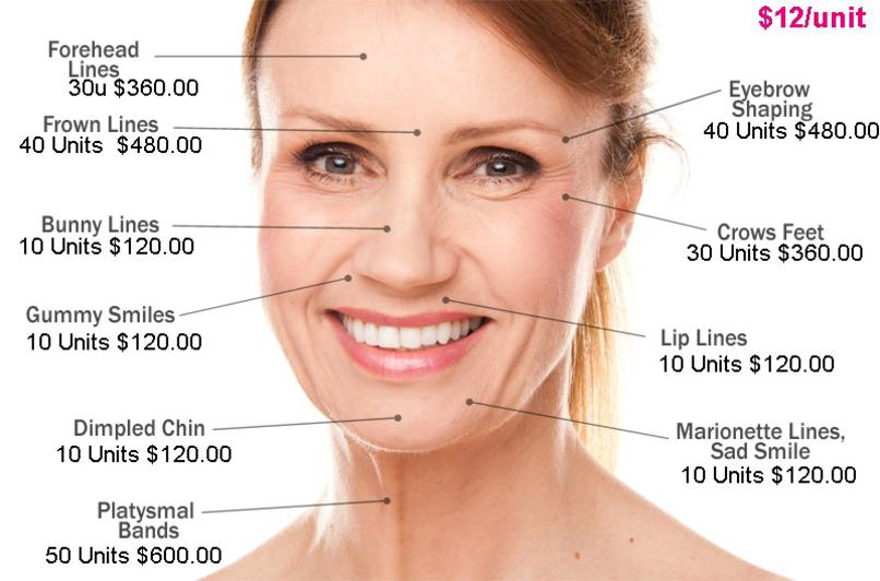 botox injections under eyes