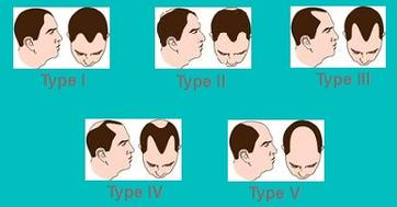 Types of Male Pattern Baldness