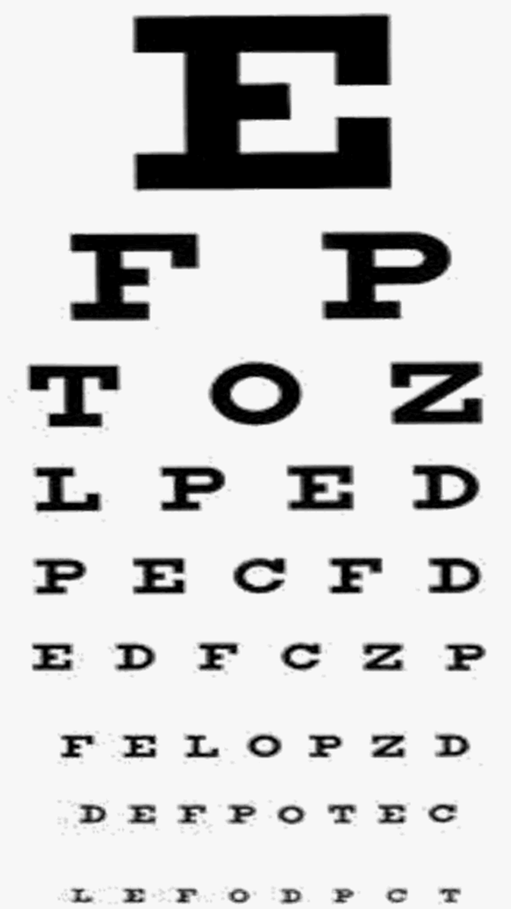 Education glaucoma geenschuldenfo Image collections