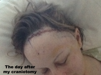 The day after my craniotomy