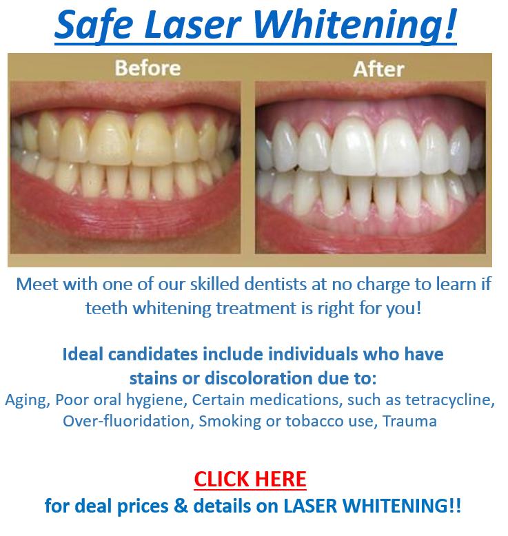 Dental Braces Deals Incl P5000 Sm Shopping Spree Choose The Price