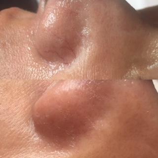 Skin Classic | Skin Tag Removal | Brown Spot Removal | San