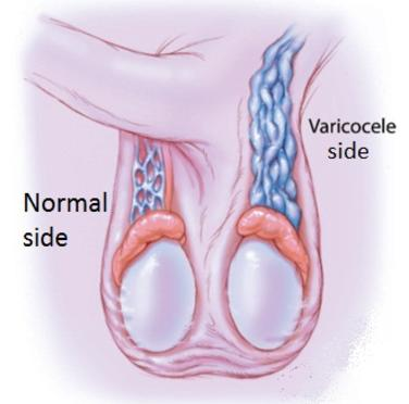 treatment for varicocele goa