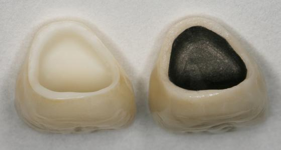 comparison of all-ceramic and ceramic-to-metal crowns