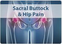 Sacral Buttock & Hip Pain