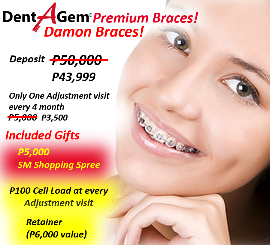 Dental braces deals incl p5000 sm shopping spree choose the dental braces deals incl p5000 sm shopping spree choose the price you can afford orthodontics gentle affordable dentist marikina katipunan cubao solutioingenieria Gallery