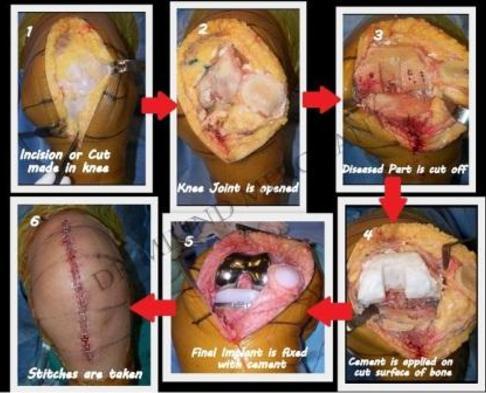 Total Knee Replacement Surgeon Specialist Mumbai In Andheri