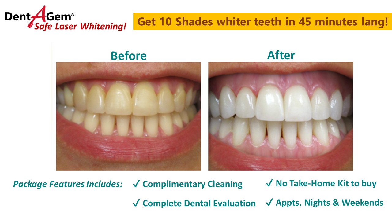 Dentagem Dental Braces Dentures Include Sm Shopping Sprees