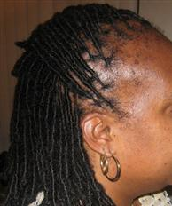 Loc extensions even loc extensions require maintenance especially if using human hair extensions your extensions must be palm rolled andor interlocked to stay uniform pmusecretfo Choice Image