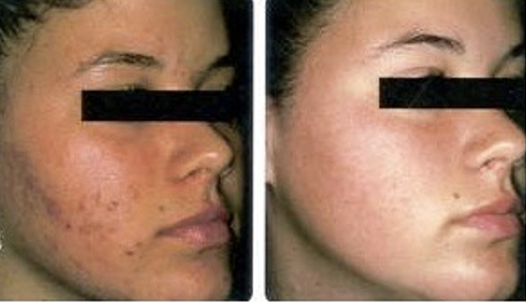 before and after acne herbal power peel green peel
