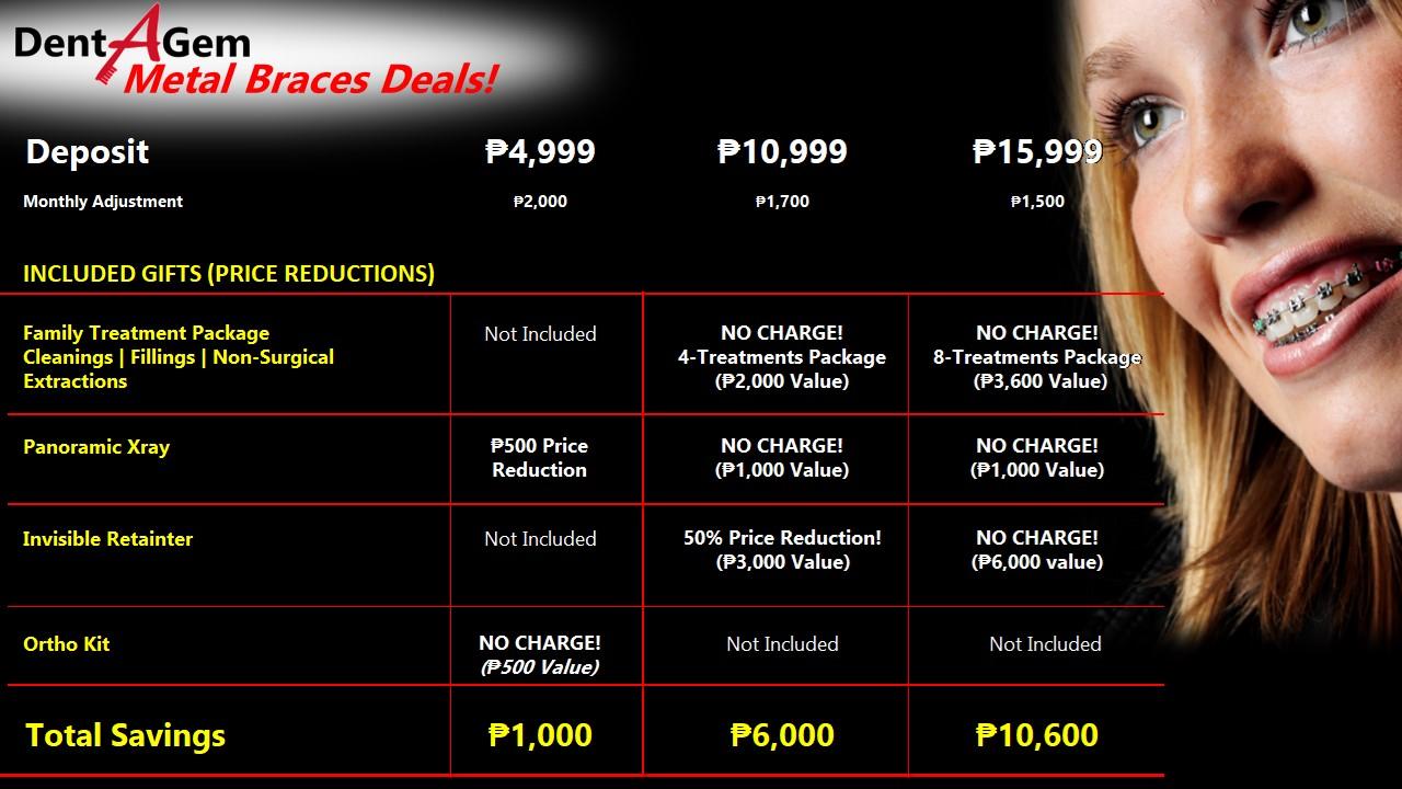 Dental Braces Deals Incl  P5000 SM Shopping Spree! Choose the price