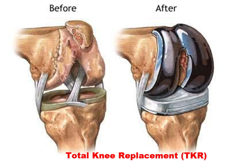 Total Knee Replacement Surgeon Specialist Mumbai In Andheri