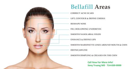 Bellafill Dermal Filler Injection Price Cost Risk Before