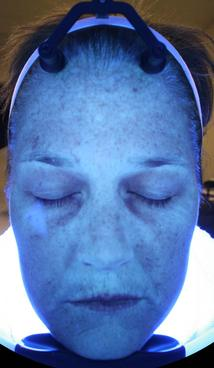 HydraFacial MD - Before