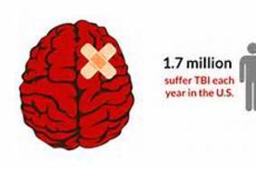 Concussion or TBI - Headache TBI & Memory Research Institute