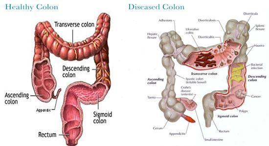Colonic, colonic tempe, Colon, Colon Hydrotherapy, Colonic, Libbe, colon device, constipation, detox, colon detox, colon health, fecal removal, enema, enima, colon health, colon cleanse, coffee cleanse, coffee enema, coffee infusion, bowel movement, bowel cleansing, clean colon, clean bowel, bowel cleaning, large intenstine cleaning, intestinal cleaning