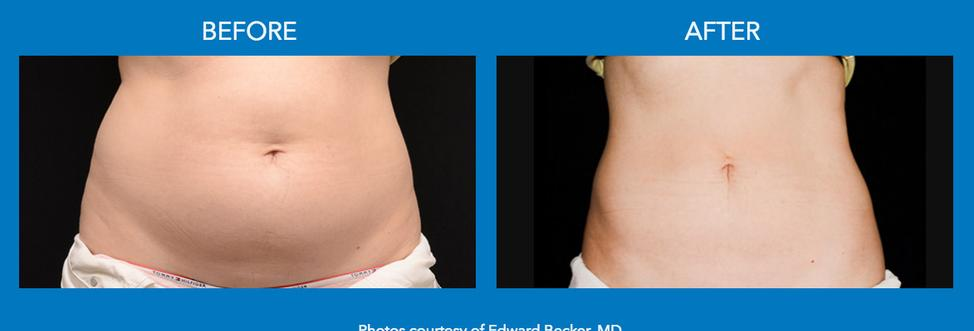 CoolSculpting Harrisburg Cool Sculpting Lemoyne Freeze Fat Harrisburg Eliminate Fat Harrisburg noninvasive Alternative to liposuction