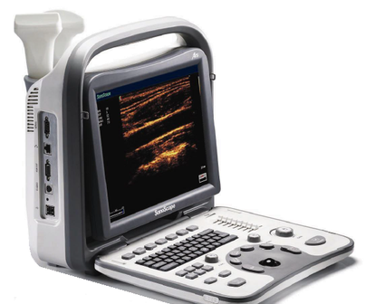 B/W Portable Ultrasound Machine Dubai UAE