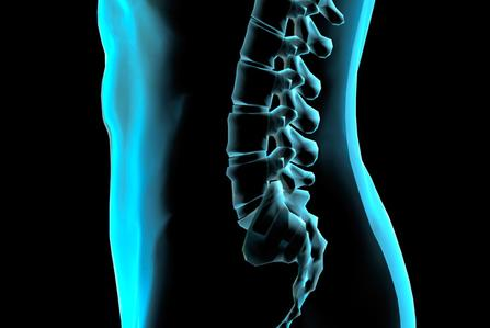 Pittsburgh Spinal Cord Injury Lawyers