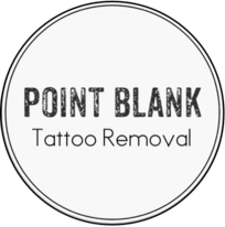 Point Blank Tattoo Removal - flat rate laser tattoo removal niagara
