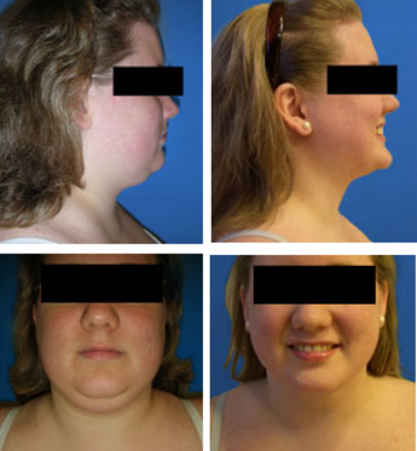 Liposuction SmartLipo Chin and Jowls