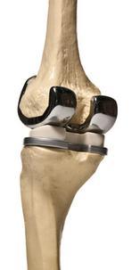 Tratamentul osteochondrozei in Kherson