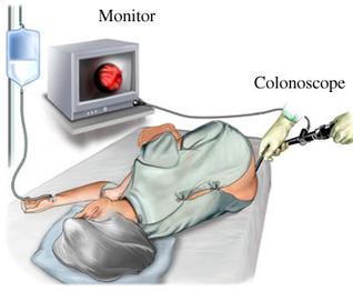 Colonoscopy Pictures