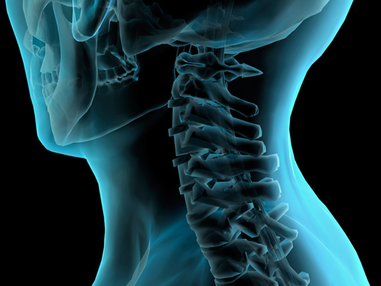David E  Kosmoski, M d  - Spine Surgeon, Neurosurgery, Spine