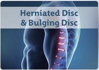 Herniated Disc & Bulging Disc