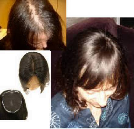 human hairpieces for women with thin thinning hair