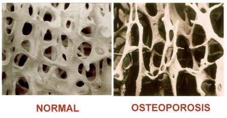 Osteoporosis Treatment In Mumbai India Dr Milind