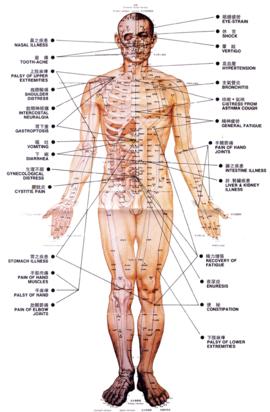 Resultado de imagen para que es la acupuntura beneficios