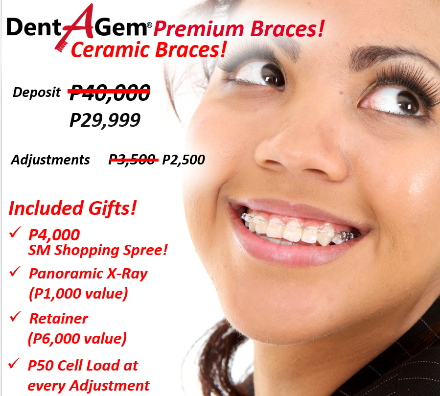 Dental braces deals incl p5000 sm shopping spree choose the whats so special about ceramic and damon braces solutioingenieria Gallery