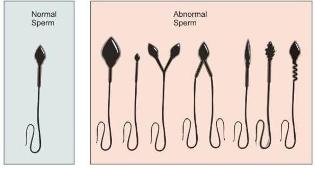 low sperm count goa