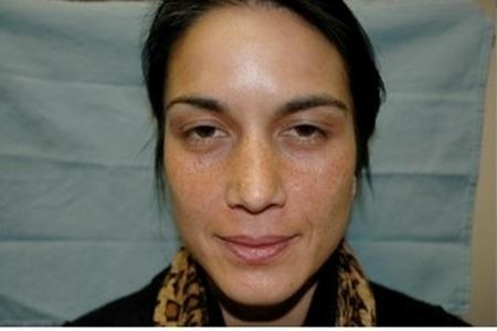 Vi Peel Facial Skin Care Bonita Springs Amp Marco Island Fl