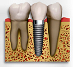 Dental Implants Edinburgh