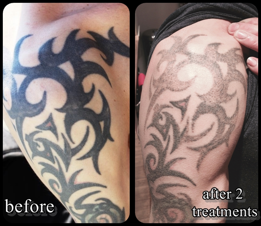 Cornwal laser tattoo removal