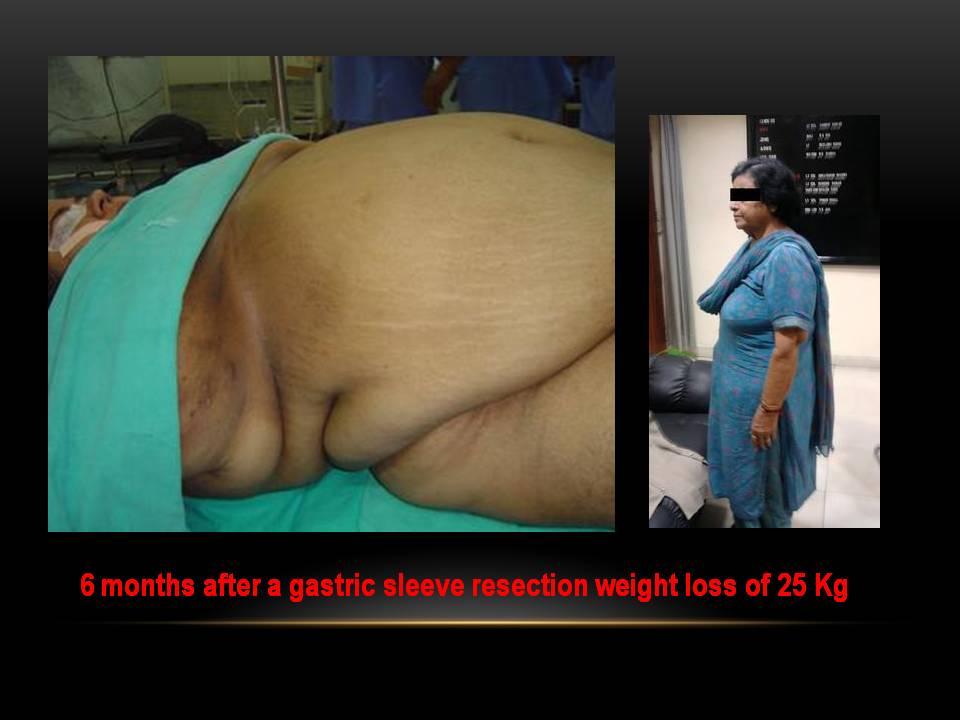 Leangains fat loss diet picture 5