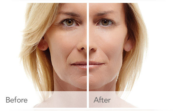 RESTYLANE Orange County CA | Filler Specials | Tear Drops Fillers