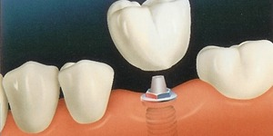dental implants and mini dental implants