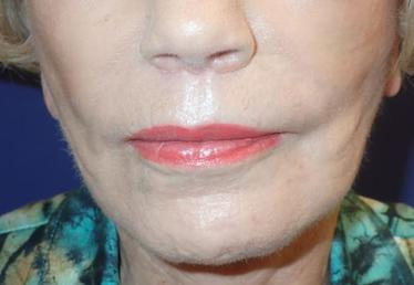 Lip Augmentation Lip Enhancement Surgery In Bonita