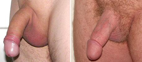 Regain penile sensitivity