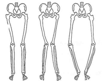 Adult Limb Deformity