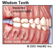 When Can You Eat Solid Food After Wisdom Tooth Extraction