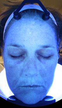 HydraFacial MD - After