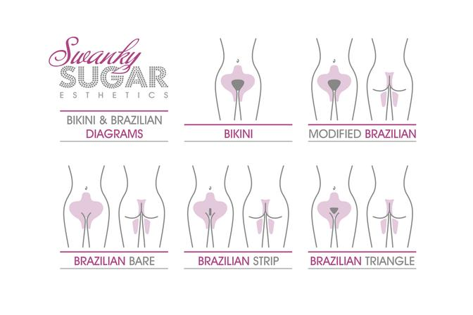 Brazilian and Bikini sugaring hair removal diagram in Ocean Beach