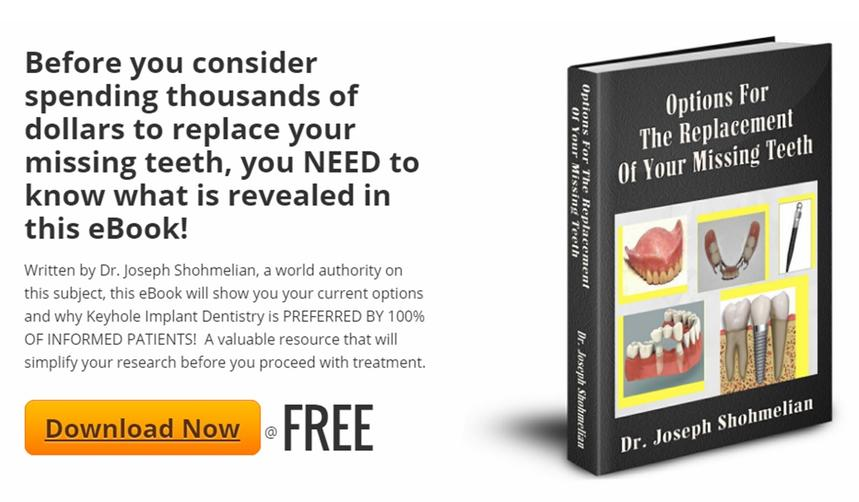 "ebook ""Options For The Replacement Of Missing Teeth"""